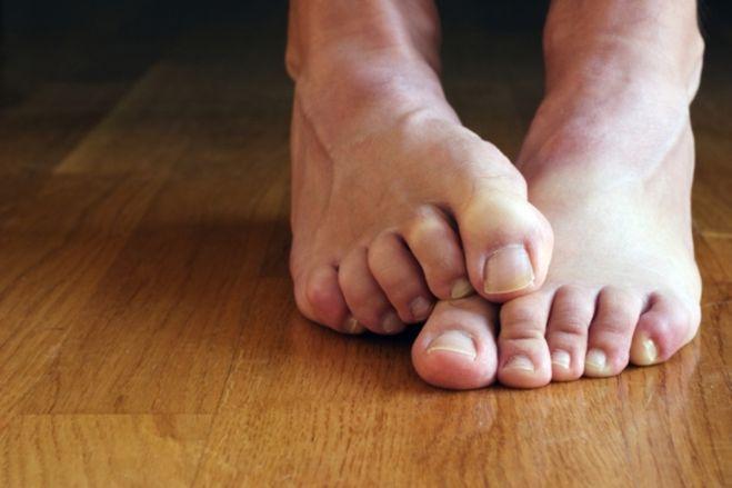 На фото: зудят ноги