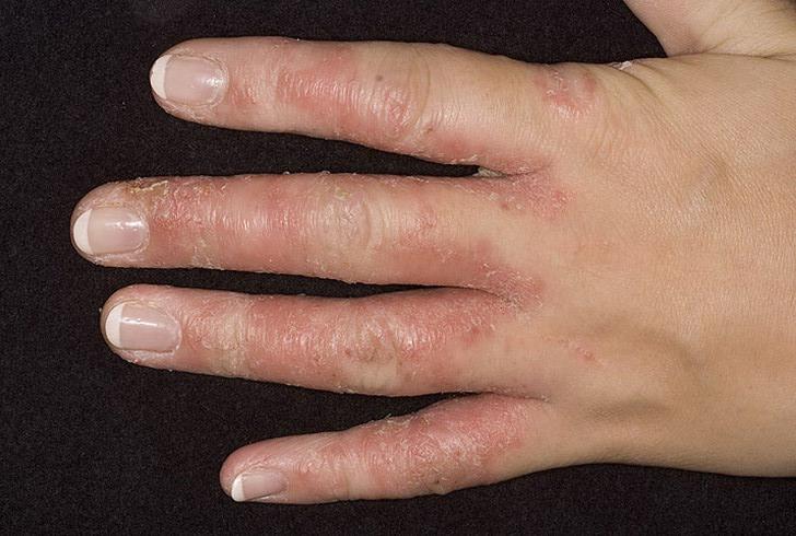 На фото: грибок кистей рук