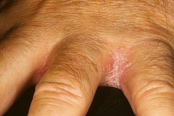 На фото: грибок между пальцев на руках