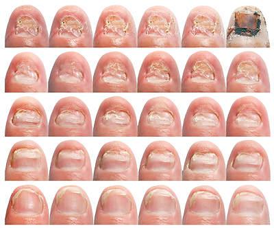 На фото: стадии грибка ногтей