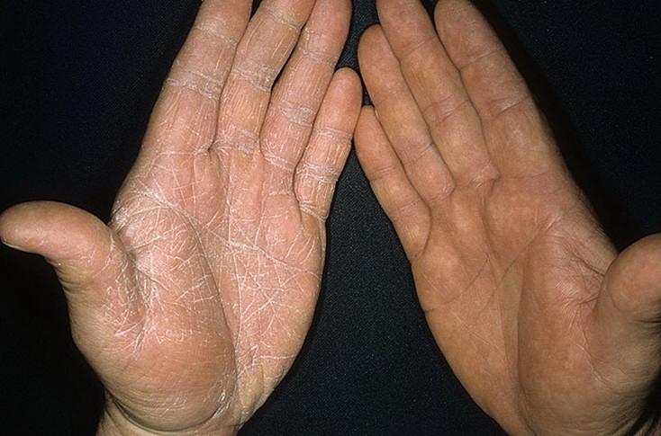 На фото: грибок на руках